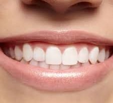 इन टिप्स की मदद से दांत से जुड़ी हर दिक्कत होगी गायब